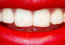 отбелить зубы в стоматологии