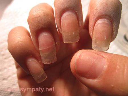 Грибок ногтей ног фото симптомы лечение народными средствами