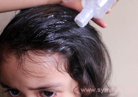 Как убрать вши и гниды в домашних