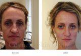 до и после коррекции лица филлерами