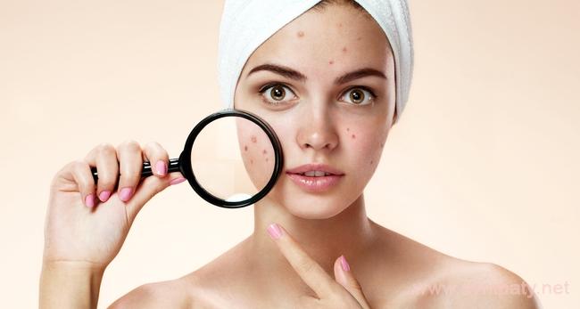 как очистить кожу лица от черных точек