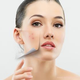 Причинами расширенных пор могут быть гормональные нарушения или неправильный уход за лицом