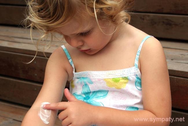 виды аллергии на руках у взрослых